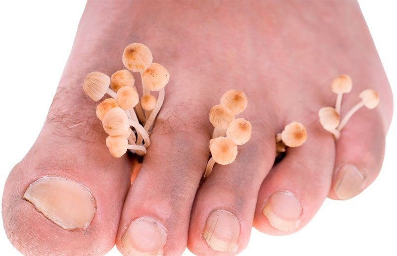 Трещины между пальцами ног