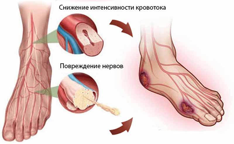 Диабетическая гангрена и повреждение нервов