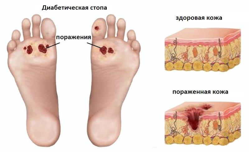 Диабетическая стопа - симптомы