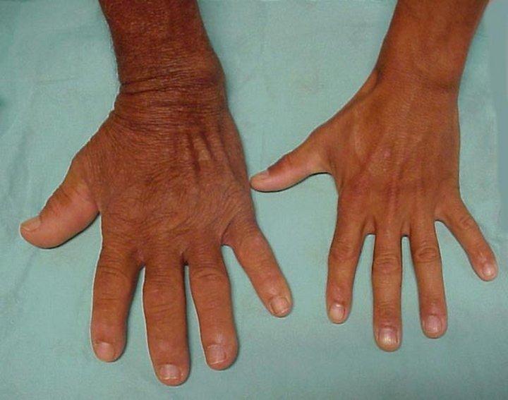 Акромегалия руки