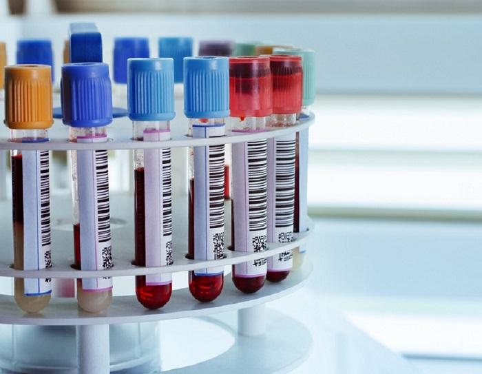 Анализ крови тиреоглобулину