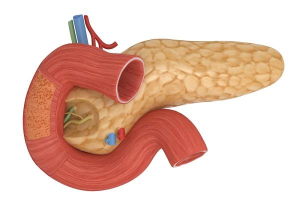 Поджелудочная железа - стеатоз