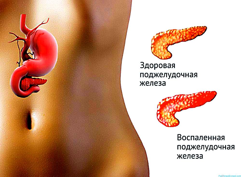 Признаки болезни поджелудочной