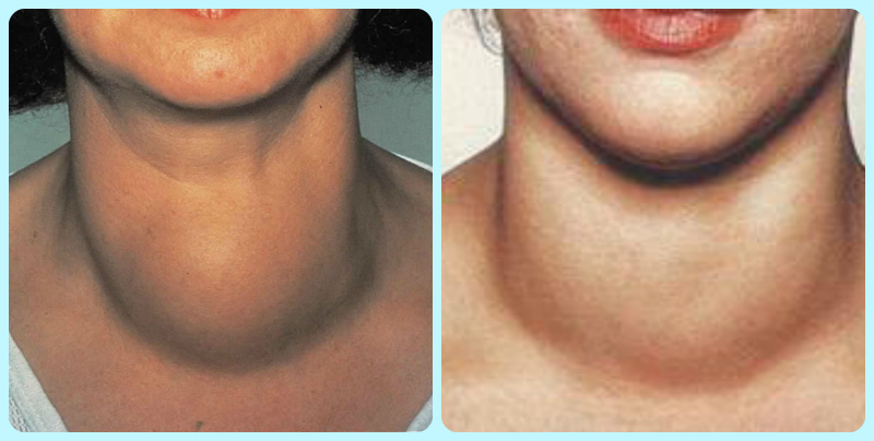 Зоб щитовидной