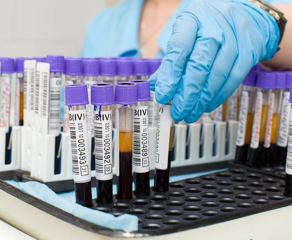 Антитела ТТГ в крови