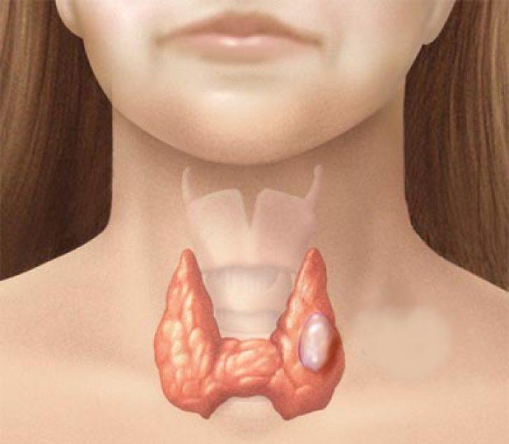 Карцинома щитовидки