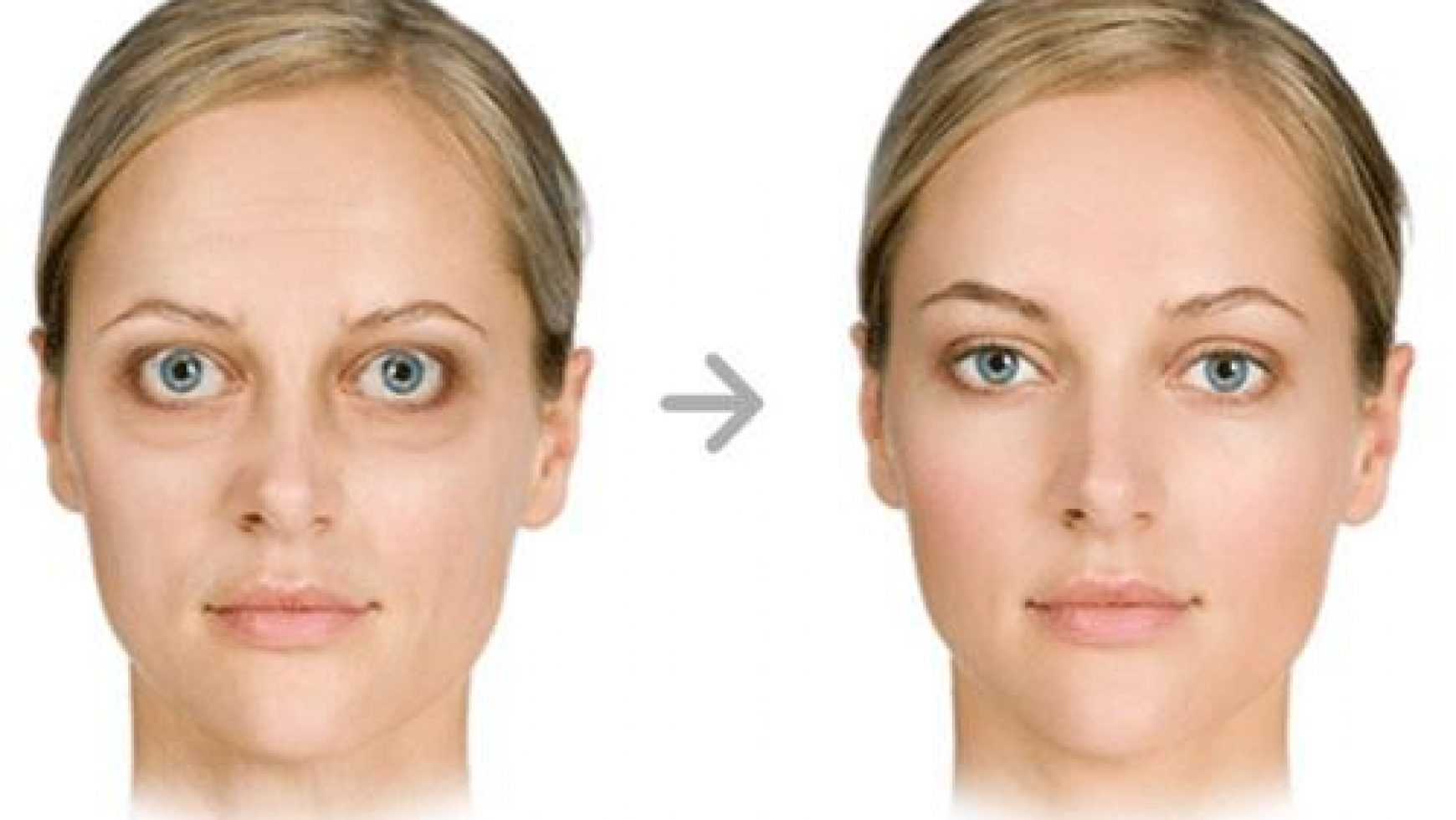 Тиреотоксикоз глаза